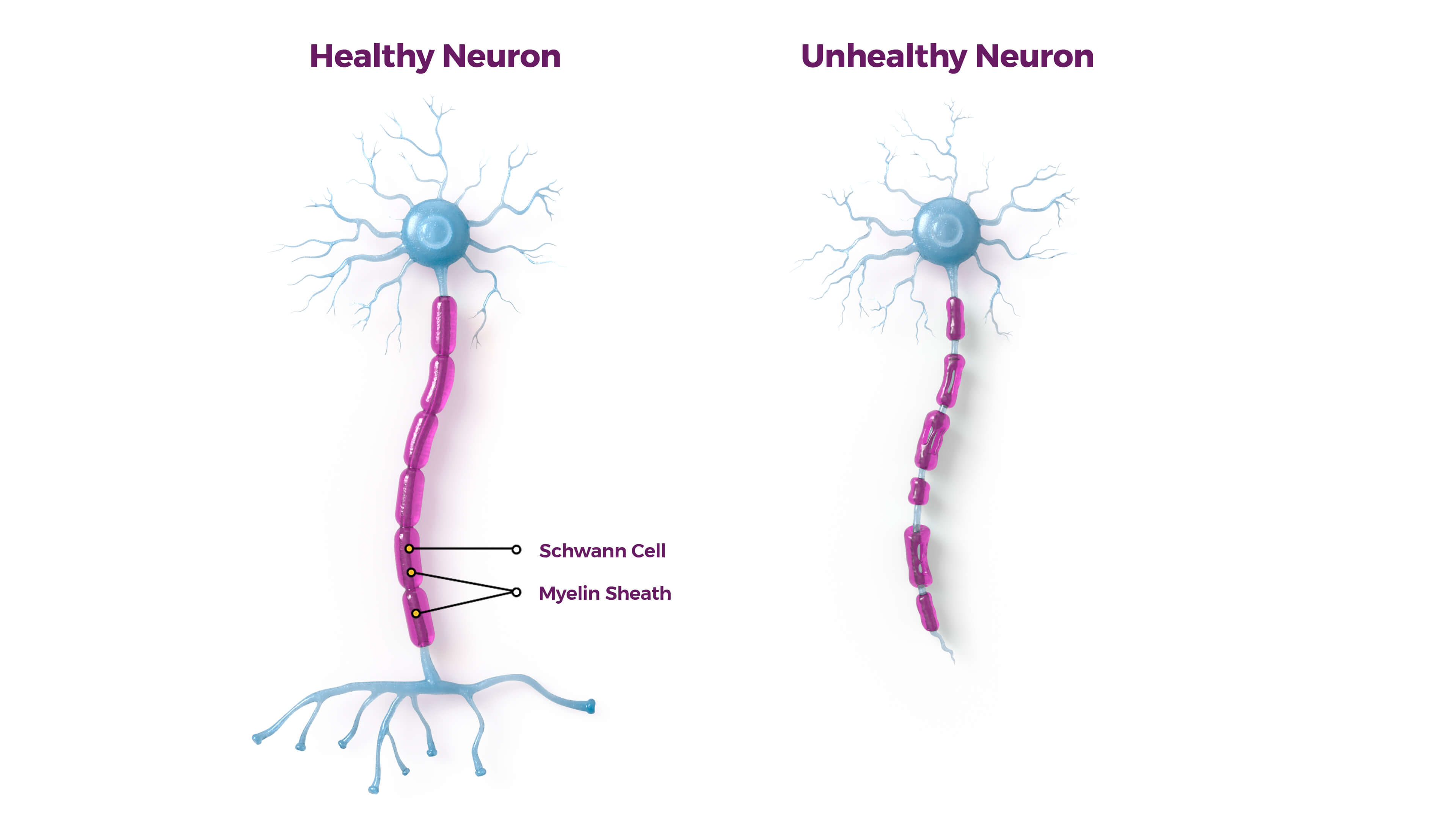CMT unhealthy neuron